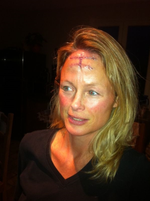 Skin Cancer Nodular Basal Cell Carcinoma Tumor On Face Post Op Photo Forehead French Word A Day